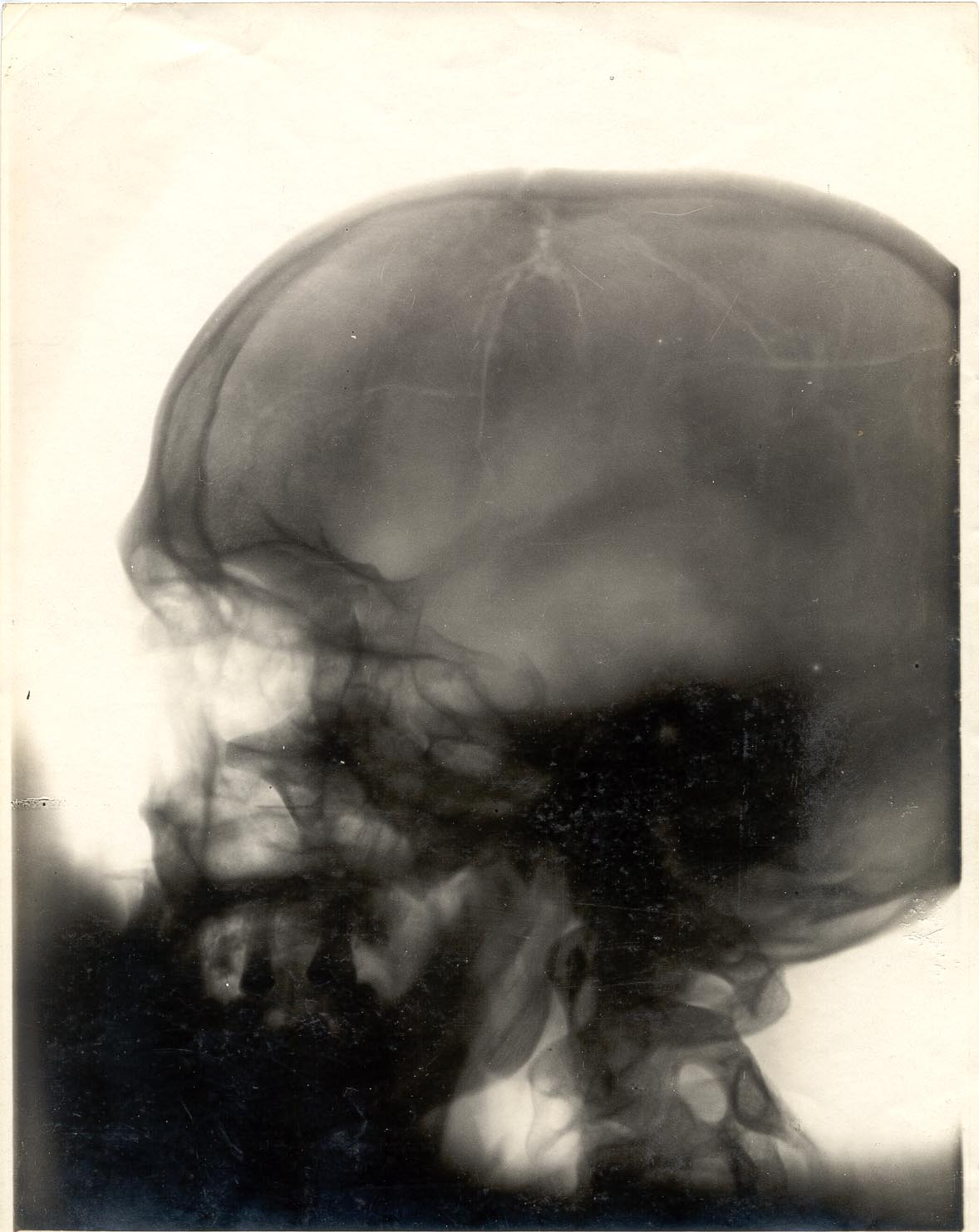 Lateral X-Ray of skull showing comminuted fracture of the vault Xray Broken Skull